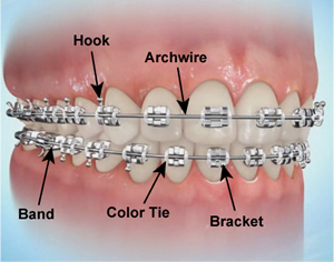 Sebastopol Orthodontics Home Care - Braces