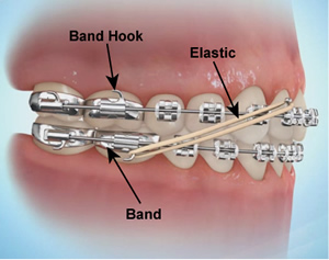 Sebastopol Orthodontics Home Care - Elastics