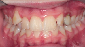 Sebastopol Orthodontics - Impacted Teeth