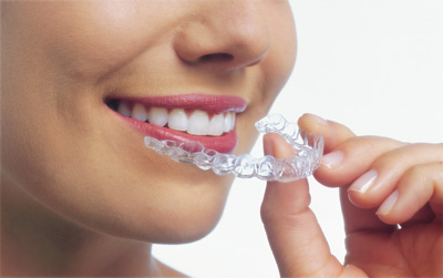 Sebastopol Orthodontics is a premier provider of invisalign