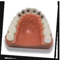 Sebastopol Orthodontics - Ligual Braces