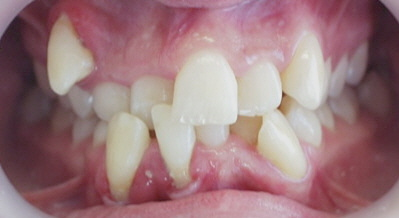 Orthodontists in Sebastopol - Common Problems in Orthodontics